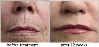 before and after treatment on skin wrinkles