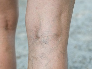 varicose veins on back of leg