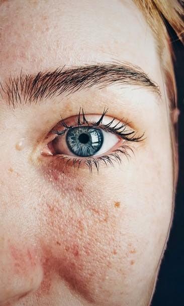 skin problem psoriasis