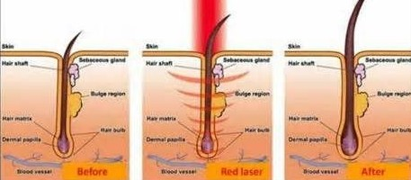 red light therapy for skin diagram