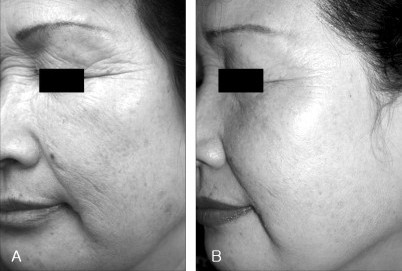 before and after infrared light therapy on face