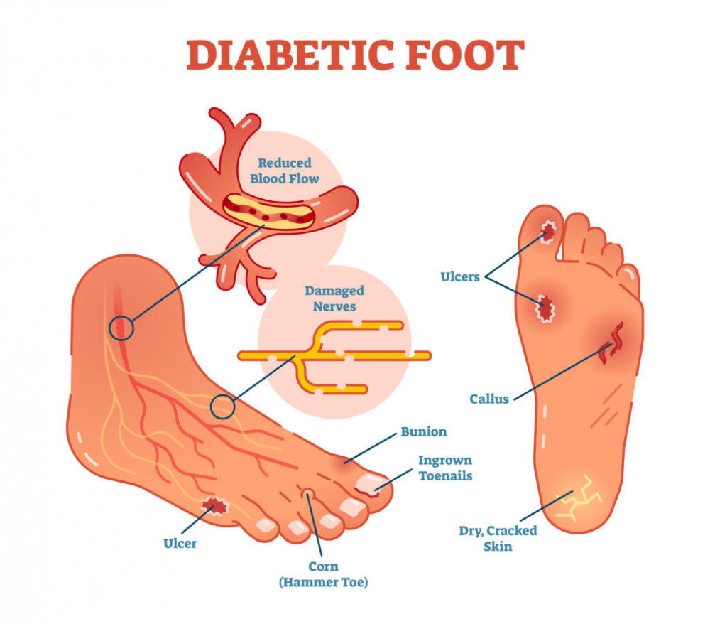 Ways that diabetes can affect your feet