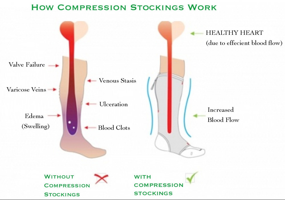 How do compression socks work ?