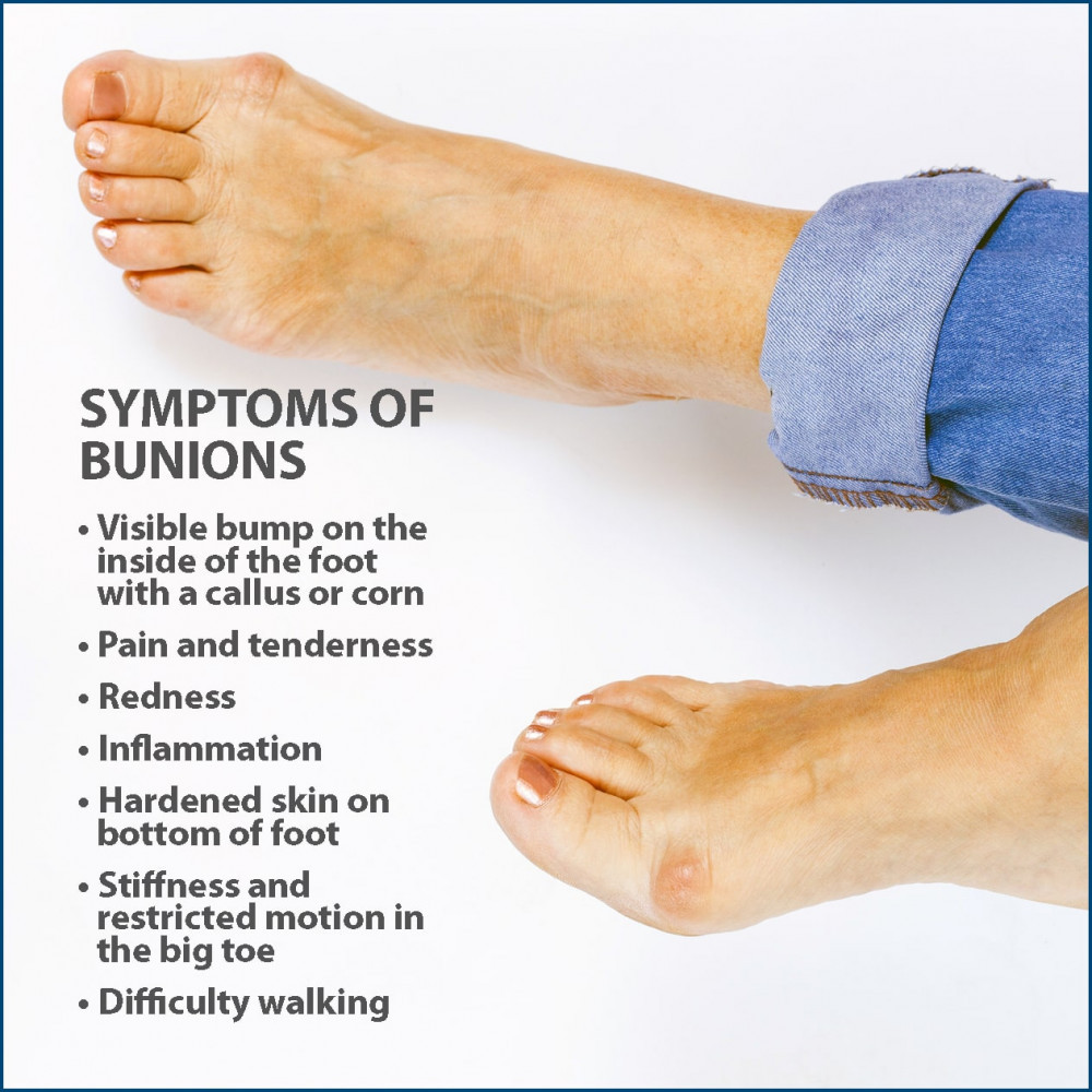What causes bunions of the feet