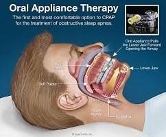 CPAP Oral appliance
