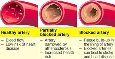 Progression of Artery Blockage