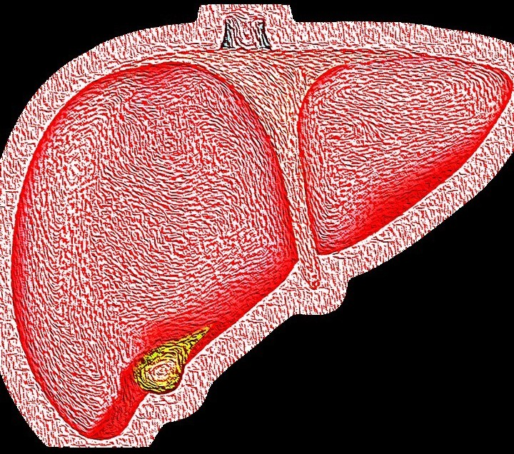 is fatty liver dangerous