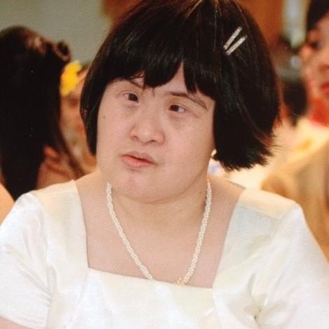 Pangga had Down syndrome