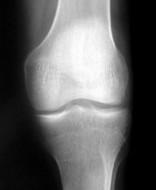 knee joint xray