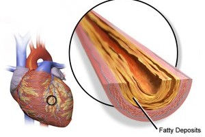 fatty deposit artery