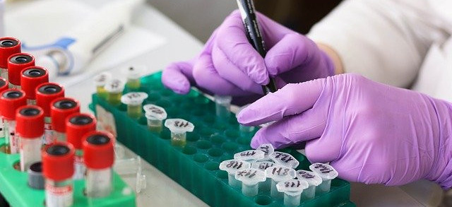 What is a c reactive protein blood test