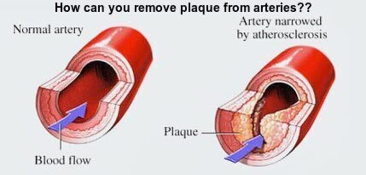 How can you remove plaque in arteries