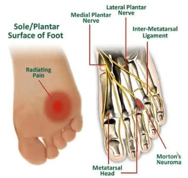 How To Treat Mortons Neuroma At Home - Mortons Neuroma Picture