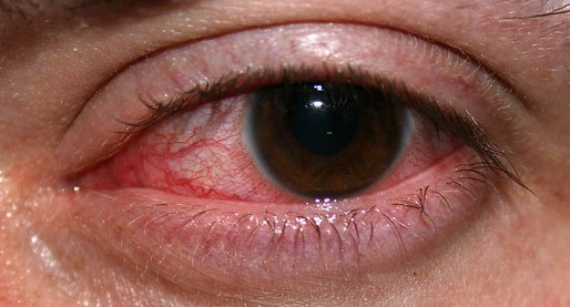 Contact Lens Acute Red Eye