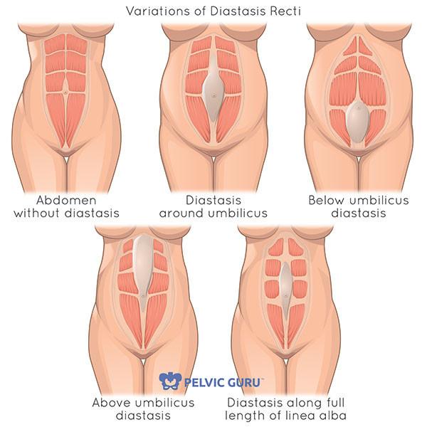 "<img src= ""diastasis chart.jpg"" alt=""how to reduce mommy belly""/>"