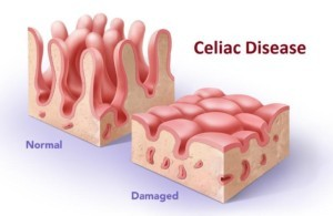 intestinal wall-at-celiac disease