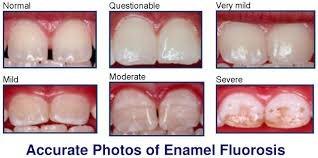 Enamel Fluorosis accurate photos