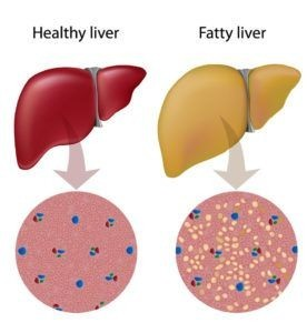 Healthy liver - Fatty liver