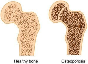 osteoporosis compare to a health bone