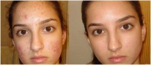 cbd-oil-acne (Girls face with and without acne