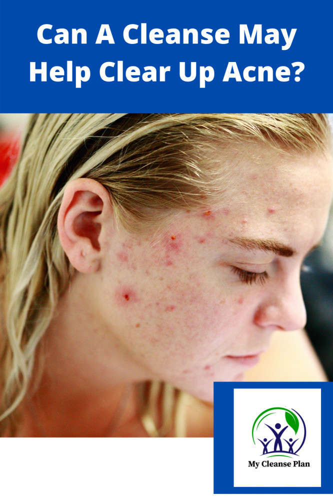 Can A Cleanse Help Clear Up Acne