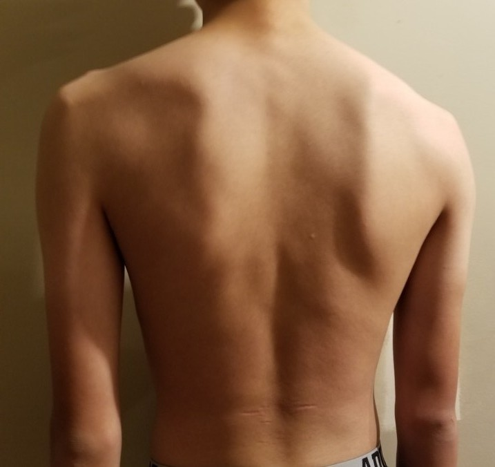 person 2 day 30 back