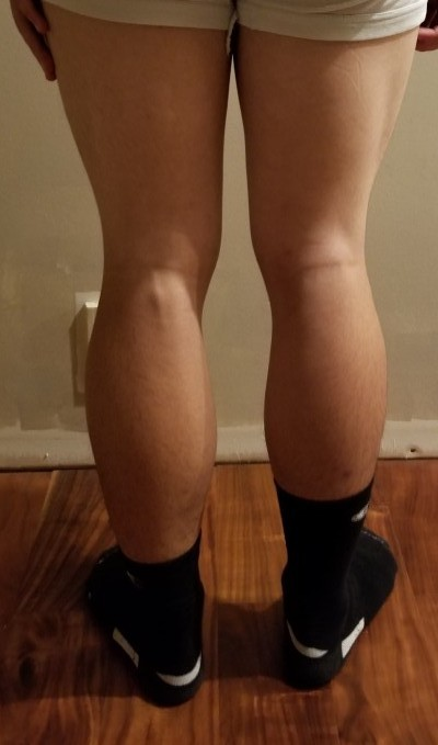 person 1 day 30 back of legs