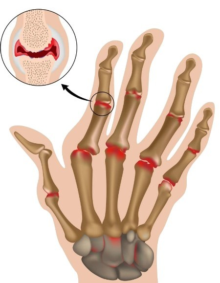 Foot Problems That Can Interfere With Your Walking