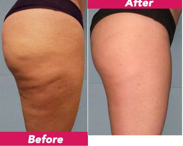 Revitol Cellulite Solution Review Results In 1 Month Skin Care