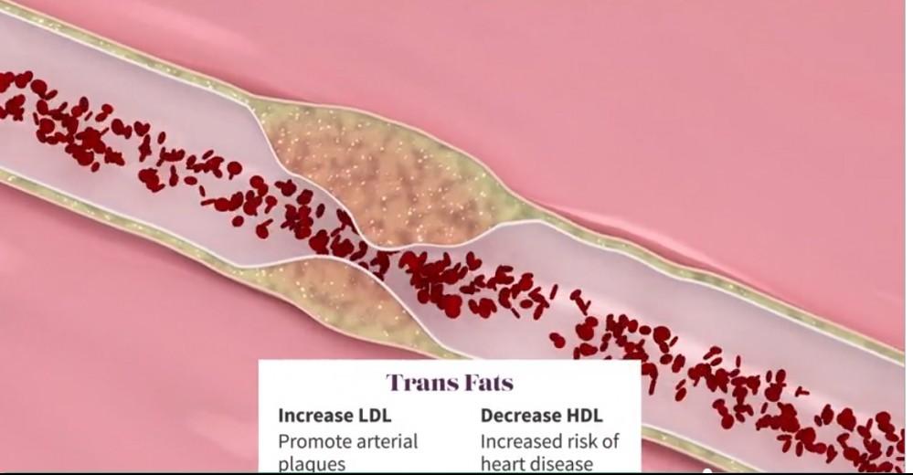 trans fats health problems