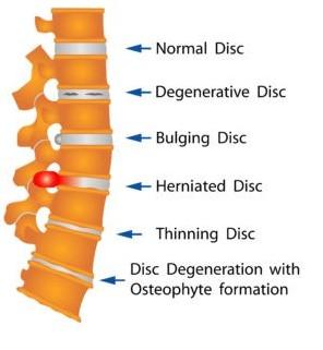 Bulging versus a Herniated Disc