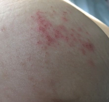 what causes eczema in babies