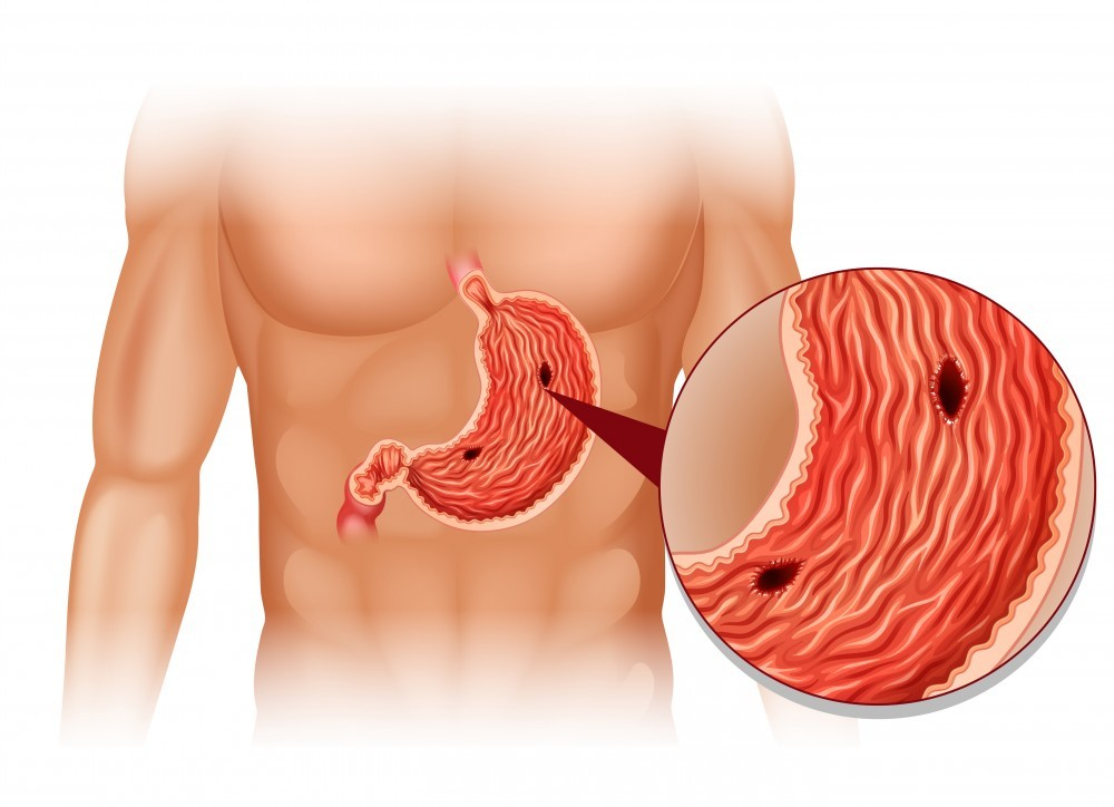 stomach ulcers may be caused by lupus medication