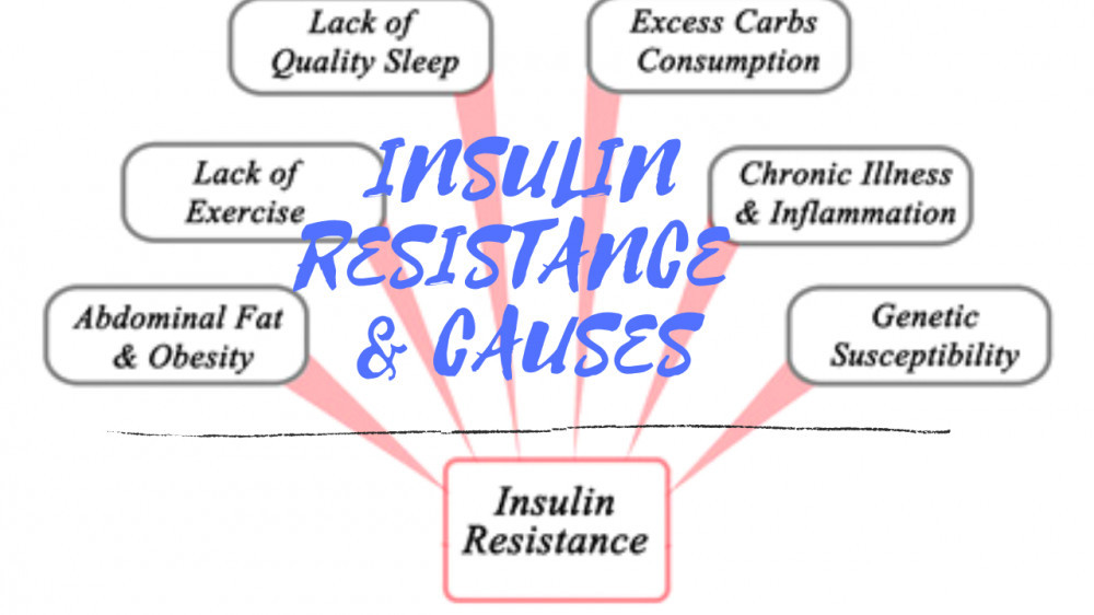 Insulin Resistance and Causes by Akon Ebah