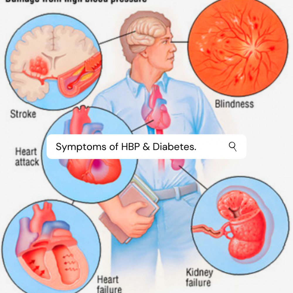 Symptoms of Diabetes and hypertension by Akon Hermann