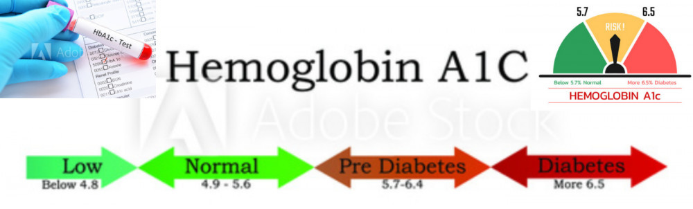 What is the A1C Test for Diabetes by Shu Golda.