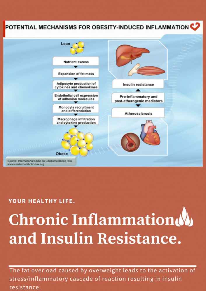 Chronic low grade Inflammation as a cause of Insulin Resistance by Akon.n