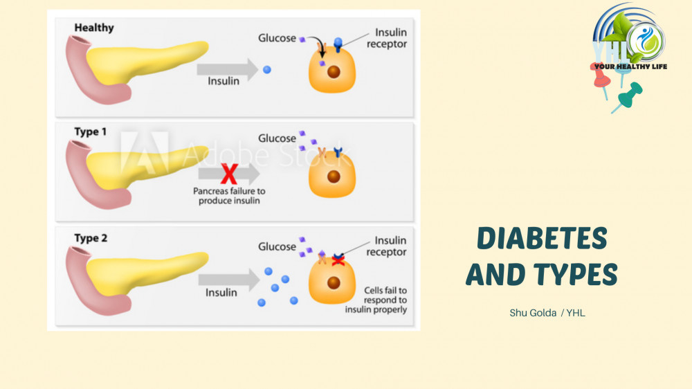 Diabetes Mellitus and Types by Golda