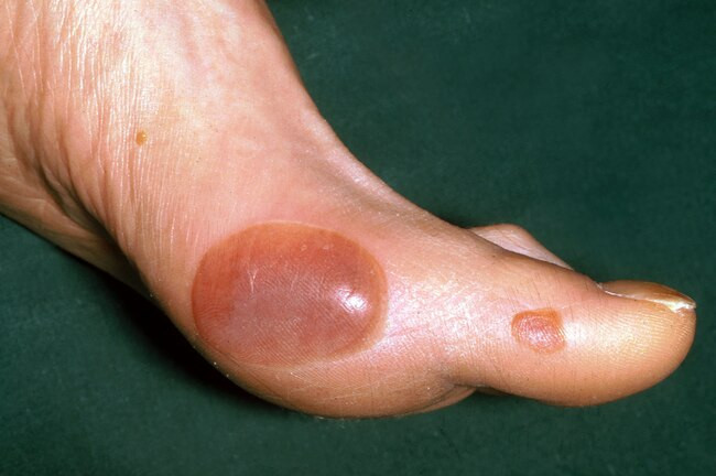 How Does Diabetes Affect the Skin - Diabetic blisters