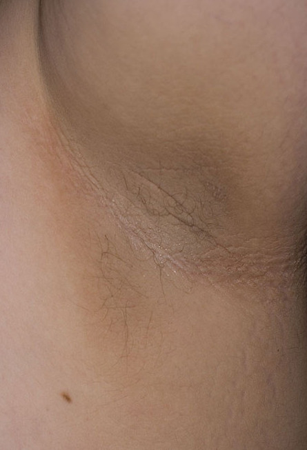 How Does Diabetes Affect the Skin - Acanthosis nigricans