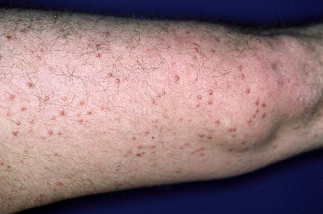 How Does Diabetes Affect the Skin - Eruptive xanthomatosis