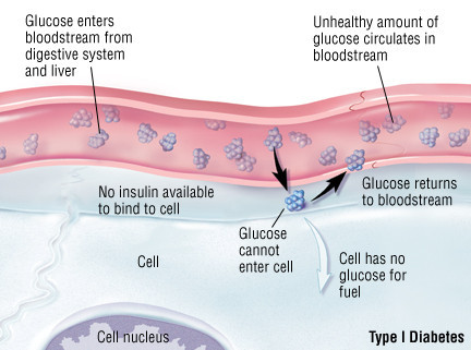 what is the cause of type 1 diabetes - blood glucose