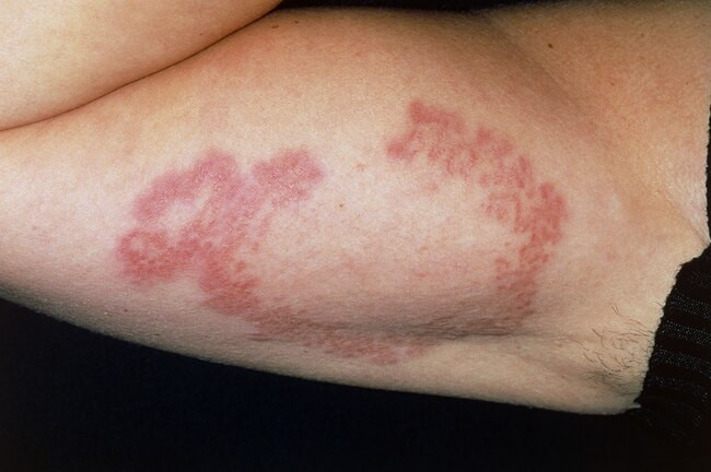How does diabetes affect the skin - disseminated granuloma annulare