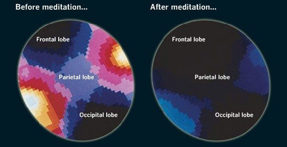 what is meditation and how it works - meditation brain waves