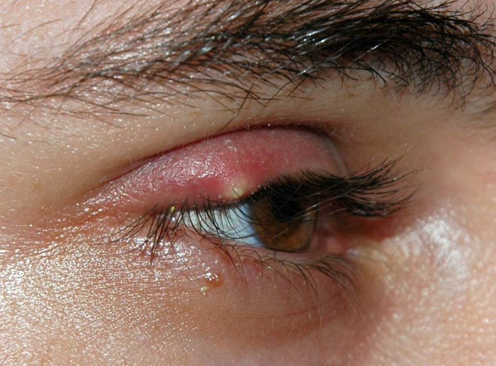 How Does Diabetes Affect the Skin - Stye