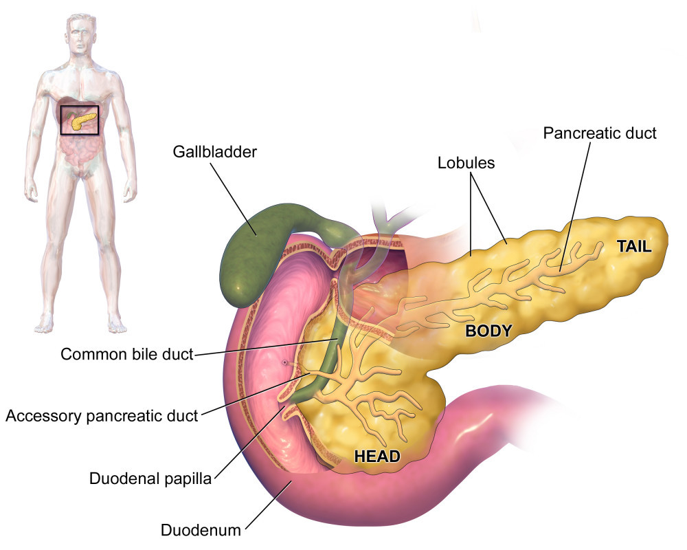 what is the cause of type 1 diabetes - pancreas