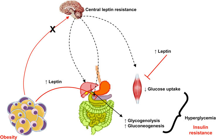 What is Leptin Resistance