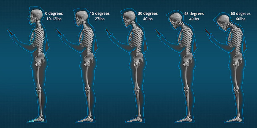 The Pressure in Pounds That You Are Putting On Your Neck With Forward Head Posture
