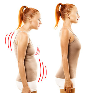 A Girl With Forward Head Posture