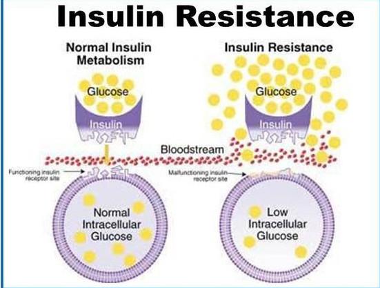 insulin resistance in bloodstream
